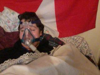 James has to wear a mask to bed to help him breathe.